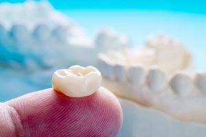 que-faire-apres-installation-couronne-pont-dentaire